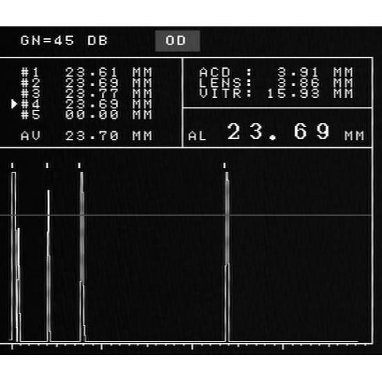 Ophthalmology AB Ultrasonic Scanner ODM-2100S