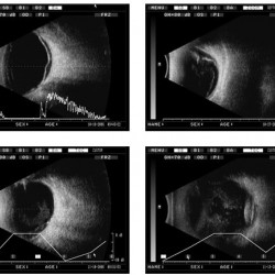 Ophthalmology AB Ultrasonic Scanner ODM-2200