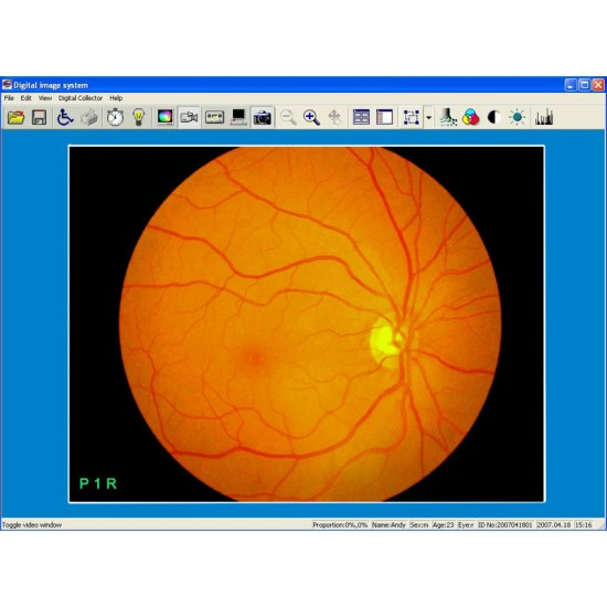 Funds Camera Fundus Fluorescent Angiography FCPSA